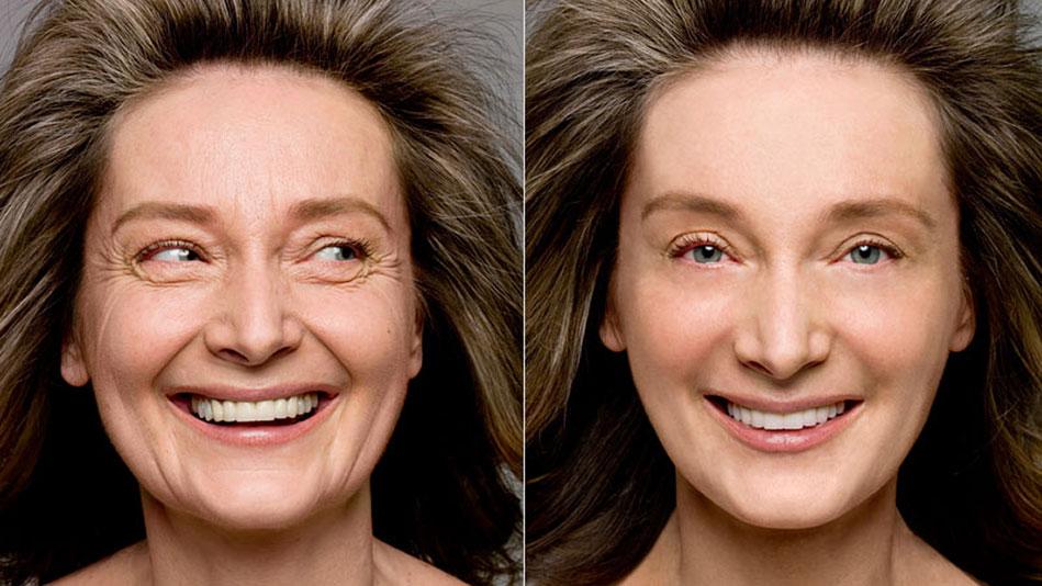Szépítő kezelések a 40-es korosztály számára